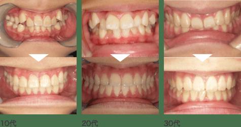 綺麗 な 歯並び